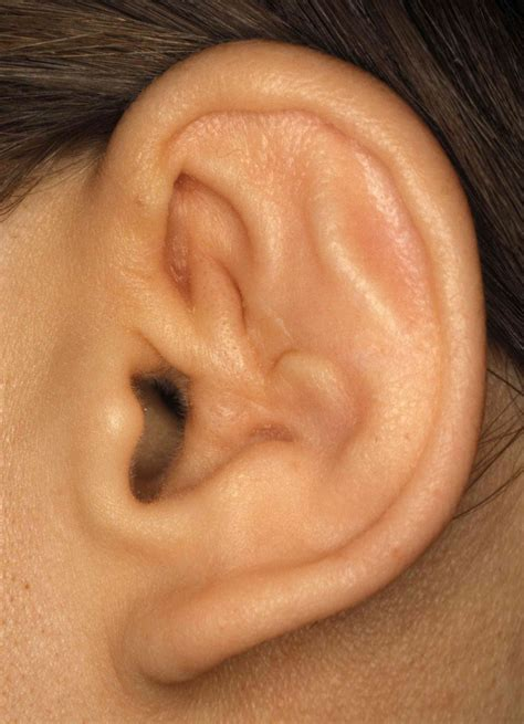 cauliflower ear otoscopy the pinna 6 20