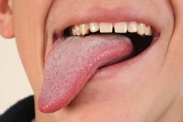 Tongue Out Pictures Meaning