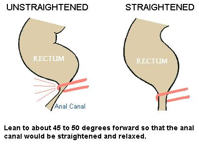 Stool Stuck In Rectum by How To Get Rid Of Your Constipation Quickly