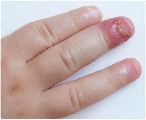 receding nail bed nail bed receding causes nail ftempo