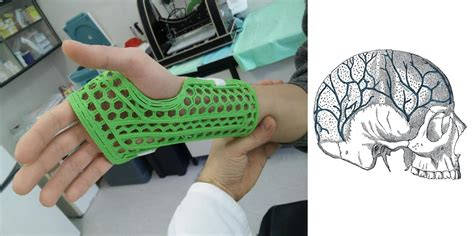 Or Casts Wasp Teams With Rizzoli Institute To Make 3d Printed Conductive Casts Cranial Implants