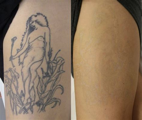 tattoo removal scottsdale temoval before and after pictures before and