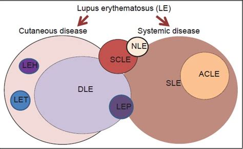 Sle Resume For Derma 100 Immunogenetics Of Systemic Lupus Erythematosus Genetic Studies Of Systemic Lupus