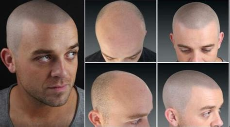 how to conceal hair transplant scar 17 best images about micropigmentation hair on pinterest