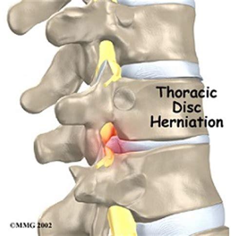 gabbia toracica sporgente articoli pagina 2 osteopata it osteopata a roma nord