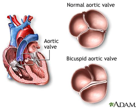bicuspid aortic valve : medlineplus medical encyclopedia
