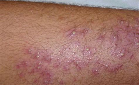 Why Does Skin Itch After Showering by Itchy Legs At No Rash Thyroid Diabetes Causes Shins Lower Legs Severe Itch At