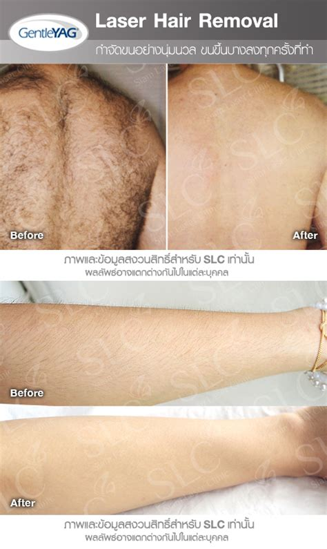 ipl hair removal clinic laser hair removal slc om hair