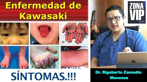 imagenes enfermedad kawasaki niños enfermedad de kawasaki quot s 237 ntomas quot dr rigoberto zamudio