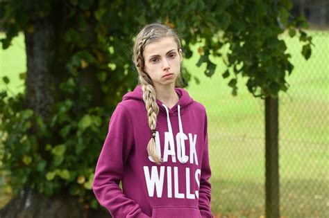 Sectioned For Anorexia by Anorexic Patient Issues Desperate Plea In Bid To Avoid