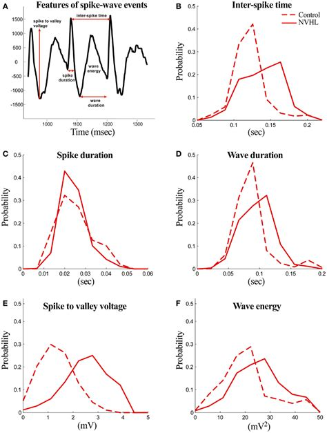 spike perm frontiers targeting neural synchrony deficits is