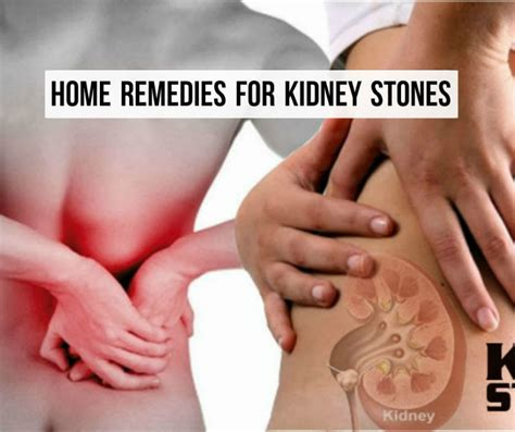 8 home remedies for kidney stones