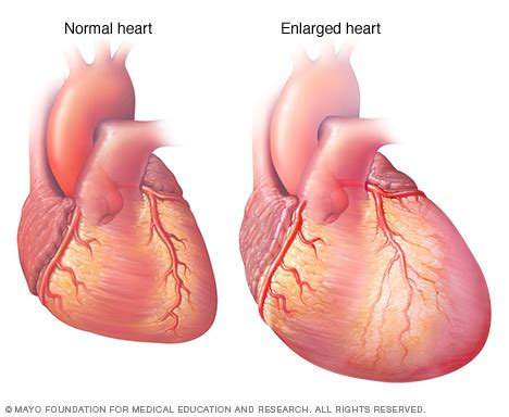 enlarged image heart failure disease reference guide drugs com