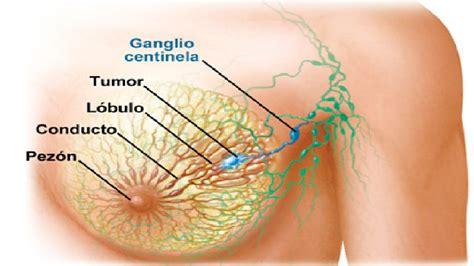 imagenes gratis cancer de mama sintomas y signos del cancer de mama youtube