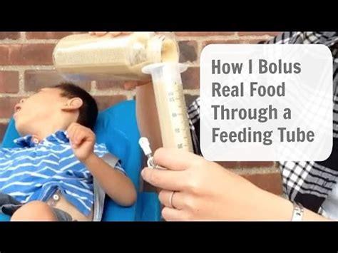 bolus tube feeding 2/3/09 | doovi
