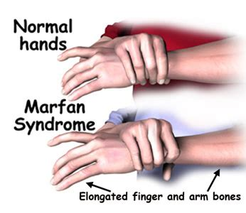 marfan syndrome pictures, symptoms, treatment and life
