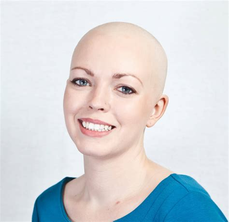 hair style for old women balding on being bald and being authentic katie crushes cancer