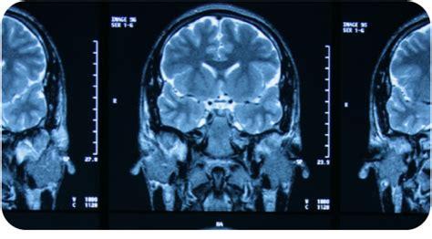 imagenes medicas resonancia magnetica la tecnolog 237 a en el diagn 243 stico