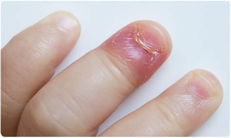 infected fingernail bed nail bed infections pictures best nails 2018