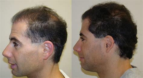 rolando model hair transplant testimonials reviews about david hair transplant corrections testimonials reviews