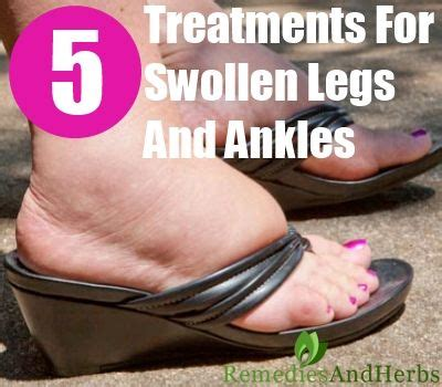 How To Detox For Swelling Ankles by 70 Best Images About Swollen Detoxification On