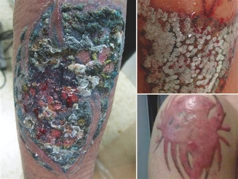tattoo infection from black ink tattoo infection 101 how do you know if your new ink is