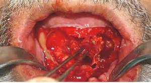 Blind Stool Enucleation Causes Symptoms Treatment Enucleation