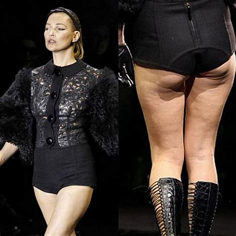 Kate Moss Must Submit A Test To Visit Us by Shocking With The Worst Cellulite My Globe Net