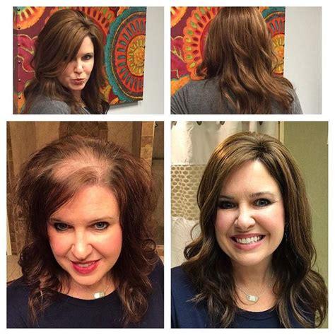 hair toppers  women  thinning hair  hair loss