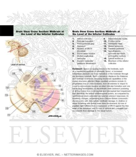 brain stem cross section midbrain level of the inferior colliculus