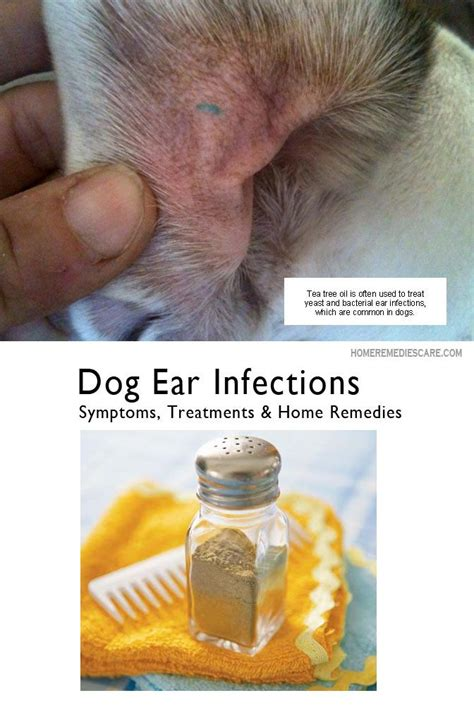 salt sock natural relief for ear infections abundant health best 25 ear infection home remedies ideas on pinterest