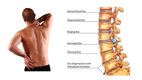 bench press lower back pain losing stomach fat after 50 relieve back pain fast bio
