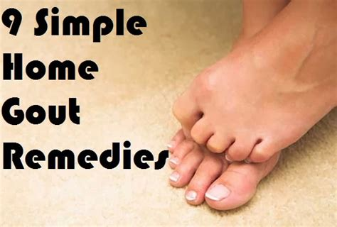 9 simple home gout remedies medimiss