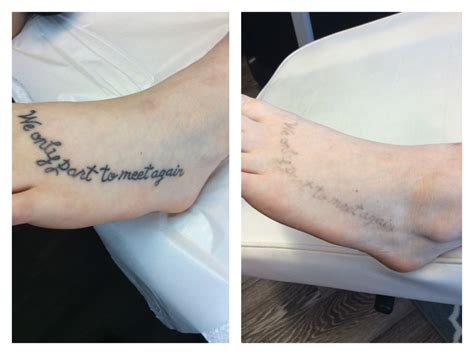 tattoo removal pictures after one session before after pictures maine laser clinic