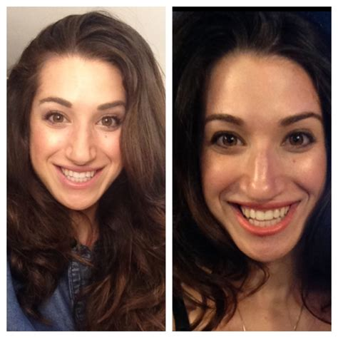 tria age defying laser before and after photos tria age defying laser review