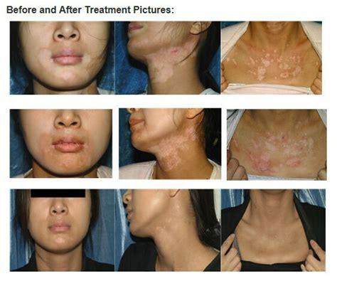 lade per vitiligine narrow band uvb ls for vitiligo 28 images uvb l