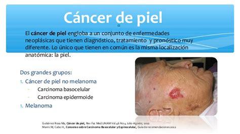 Cancer De Piel | cancer de piel nieves fernandez