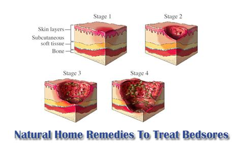 how to treat bed sores at home natural home remedies to treat bedsores quickly my