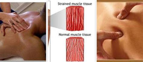 Does Massaging Your Muscles Help Detox by Tissue Sydney 0457099991 David