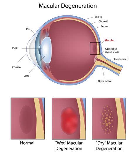 blue light macular degeneration does blue light therapy cause macular degeneration