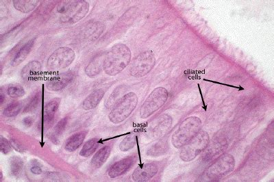 basement membrane epithelium thick basement membrane