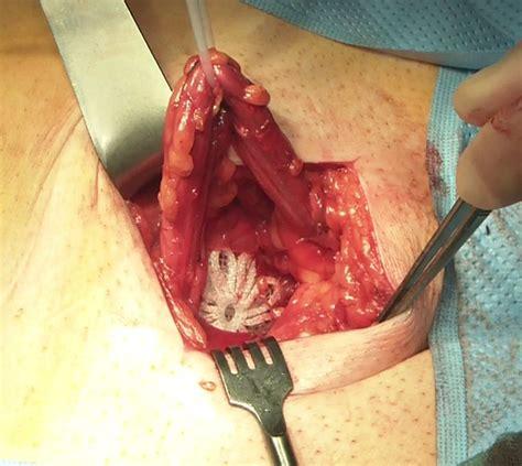 ernia addominale interna prof giuseppe amato tecnica ernia inguinale con protesi
