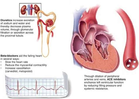 diuretic after c section best 25 beta blockers ideas on pinterest cardiac