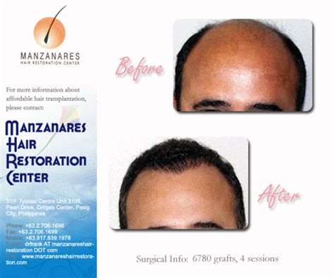 hair transplant cost in the philippines cost of hair transplant in philippine peso hair transplant