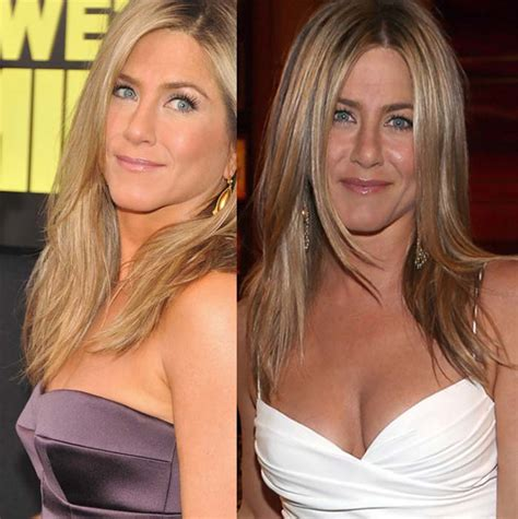 Did Aniston Get Implants by Aniston Admits Plastic Surgery Or Bad Nose