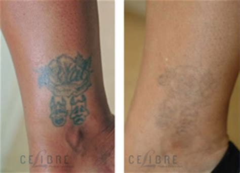 large tattoo removal cost what will my laser removal cost