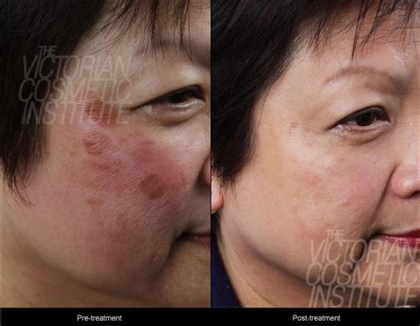 before and after pictures of pigmentation on skin facial skin pigmentation treatments melbourne