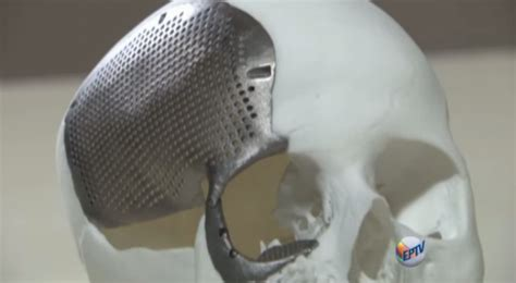 Toxicity Of Household Products by How When Why A Guide To 3d Printing With Titanium