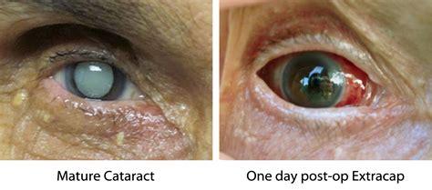 cataract surgery cataract eyerounds ophthalmic atlas