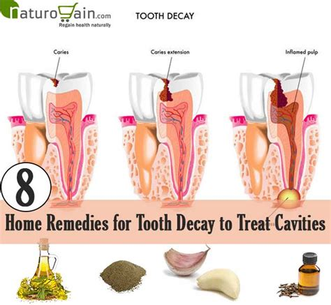 home remedies to stop tooth decay